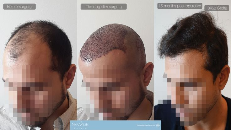 Result of 15 months - 3450 Grafts FUE Hair surgery in a single session performed by Ilker Apaydın, MD  /// For more information 📲 WhatsApp: 0090543 470 47 09 ///  #hairtransplant #haartransplantation#fuehairtransplant #haarverlängerung #hairtransplantation #greffedecheveux #trasplantedepelo #haartransplantatie #trasplantecapilar #trapiantodicapelli #pérdidadecabello #haarlos #Alopezie #Haarausfall #Haarverlust #capillumtraducere #hårtransplantasjon #пересадкаволос #毛髪移植 #모발이식#ishrs…