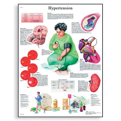 an analysis of hypertension causes and prevention Hypertension, or high blood pressure (hypertension) causes its own problems the seventh report of the joint national committee on prevention, detection.
