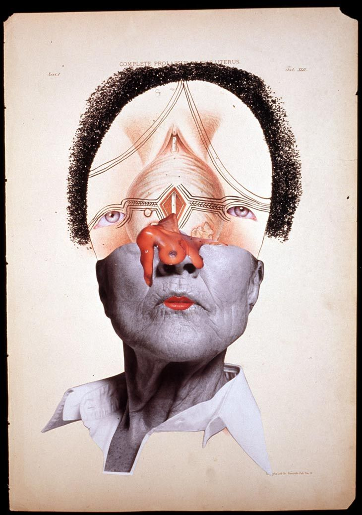 Wangechi Mutu  Complete Prolapsus of the Uterus  2004  Glitter, ink, collage on found medical illustration paper  46 x 31cm
