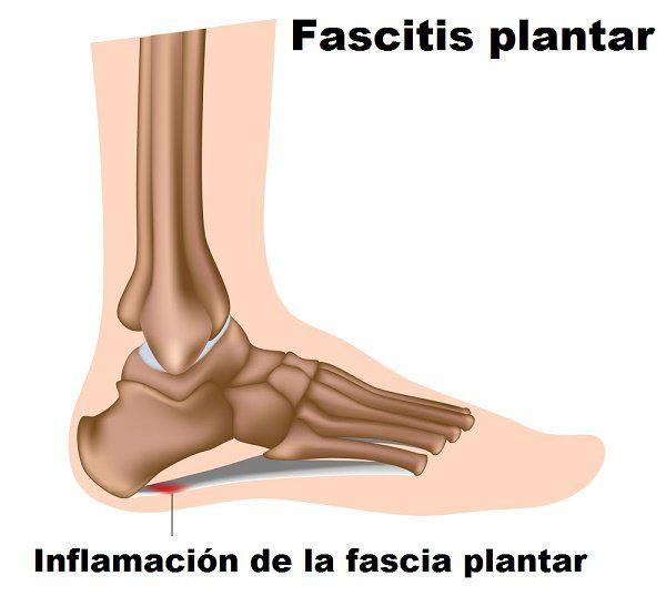 Muchas personas sufren de dolor en el pie, y ese dolor es comúnmente asociado a la fascitis plantar; dolor del ligamento delgado que conecta el talón.