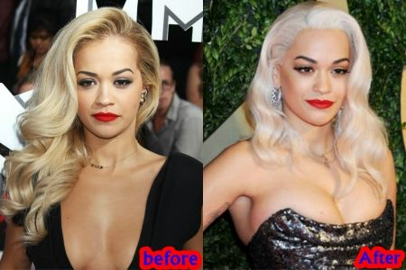 E Breast Implants Before And After RITA ORA BREASTS IMPLA...