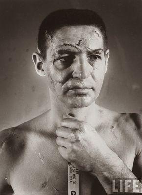 El portero de hockey Terry Sawchuck, 1966. Esta era la cara de un portero de hockey antes de la invención de los cascos con máscaras, 1966