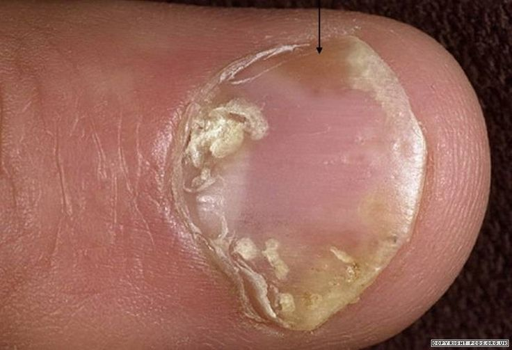 Psoriasis may cause scaling, deformity, and fragmen- tation and detachment of the nails 2