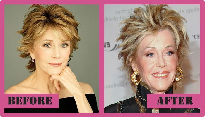 Jane Fonda Plastic Surgery Before And After Jane Fonda Plastic Surgery #JaneFondaPlasticSurgery #JaneFonda #gossipmagazines