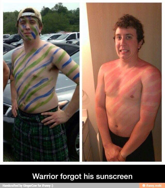 Warrior earned his stripes, paint sunburn fail
