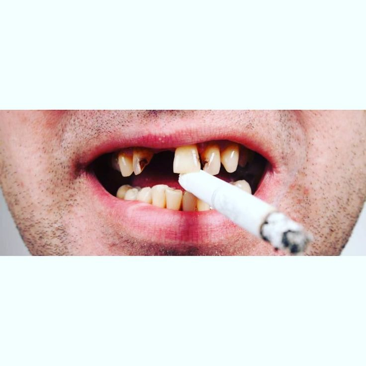 #Badbreath is only the beginning. The effect of #smoking on your #oralhygiene can cause conditions like a dulled sense of taste and smell all the way to #oralcancer. #QUIT #DentalHealth #MountainViewFamilyDental #MVFD #Denver #CO by mountain_view_family_dental Our Oral Cancer Screening Page: http://www.myimagedental.com/services/preventive-dentistry/oral-cancer-screening/ Other Preventive Dentistry services we offer: http://www.myimagedental.com/services/preventive-dentistry/ Google My…