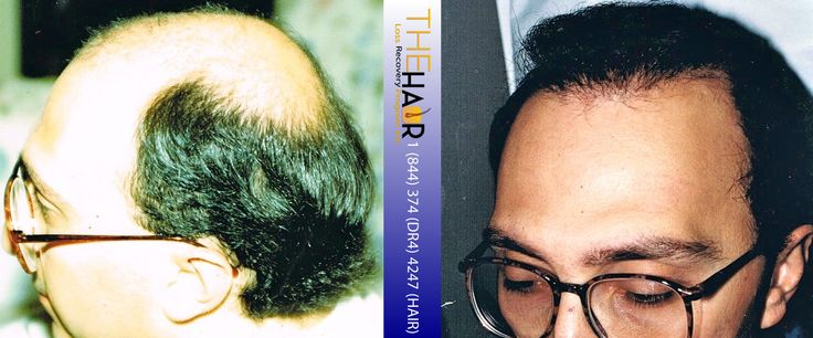 Hair Transplant Before and After - Toronto Hair Transplant and Toronto Hair Restoration