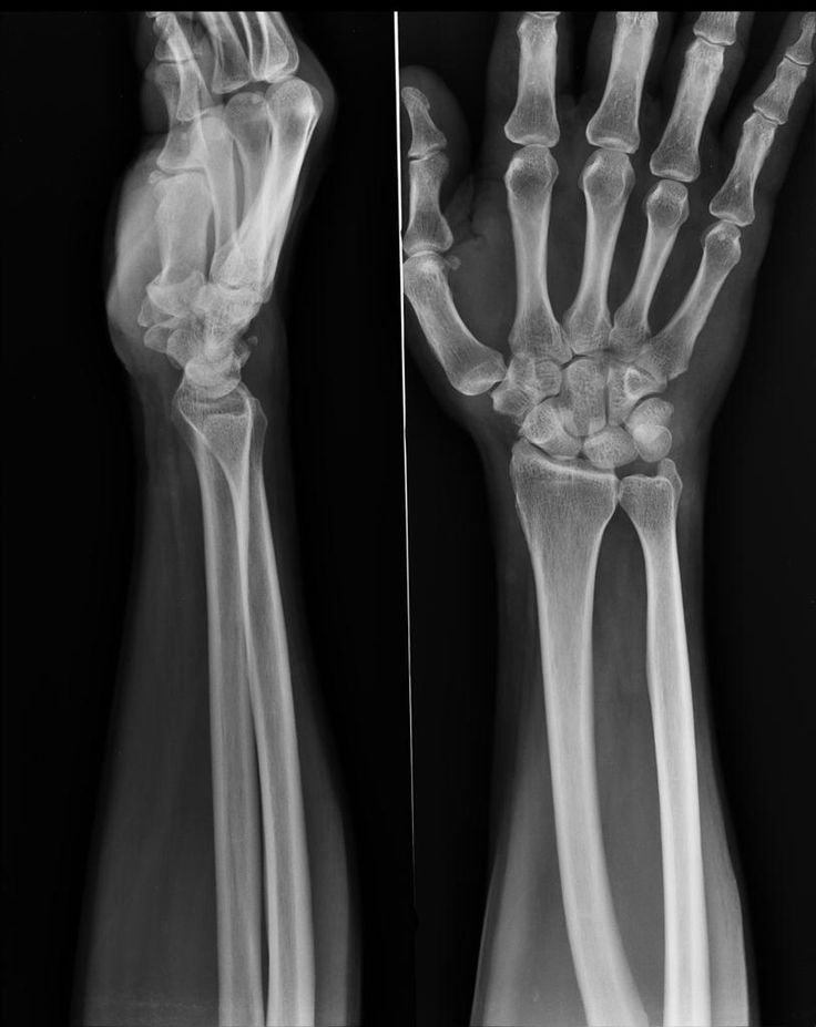 54 best Radiology images on Pinterest | Radiology, Anatomy and Medical