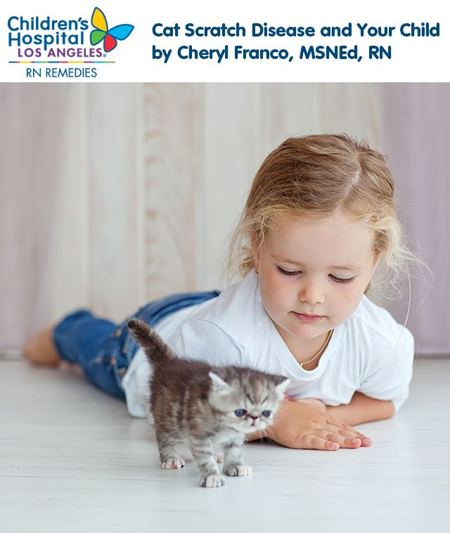 Cat Scratch Disease and Your Child - Cat scratch disease can be serious and it's important to know the symptoms, treatment and how to prevent the disease from affecting your family and your loving #cat at home.  #safety #kitten #kids #family #tips