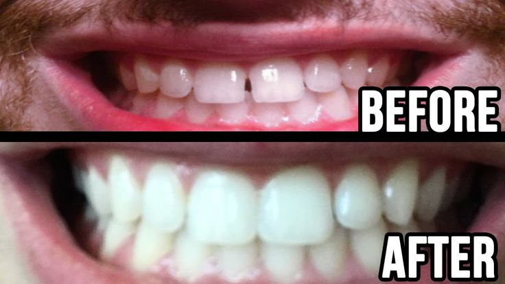 All credit to my lovely dentist who fixed my gap between my teeth! It bothered me so much for such a long time. Finally I can fully smile without being embarrassed :/ Don't miss it and hit the link down bellow!             whiter-teeth.netmd.in MUSIC:whiter-teeth.netmd.   #brace #braces #fixed #fixing teeth gap #fixing teeth gaps #fixing teeth without braces #gap #how to #how to fix teeth #how to fix teeth without braces #how to fix teeth without p