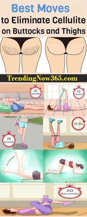 ELIMINATE CELLULITE ON BUTTOCKS AND THIGHS WITH JUST 20 MINUTES A DAY!,