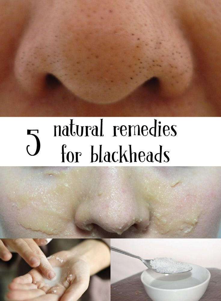 Miss Beauty: 5 Natural Remedies for Blackheads