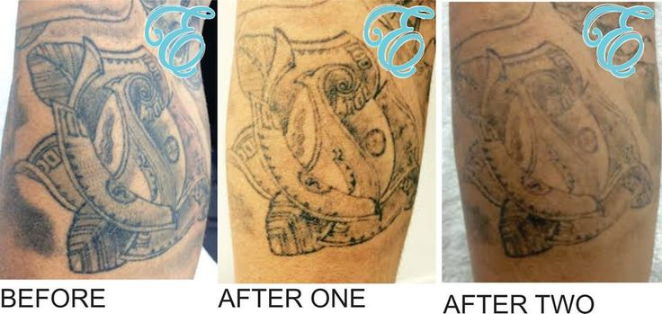 Only 2 treatments and almost ready for a cover up!