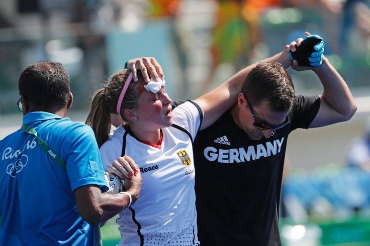 Blutige Niederlage: Hockey-Spielerin Nike Lorenz hat sich im Spiel Deutschland...