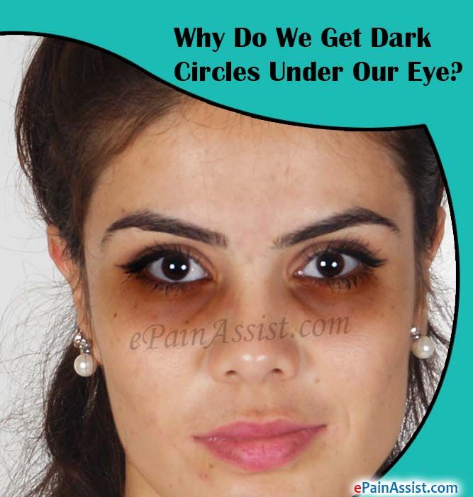 Why Do We Get Dark Circles Under Our Eye?