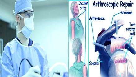 Arthroscopic Shoulder Surgery Recovery