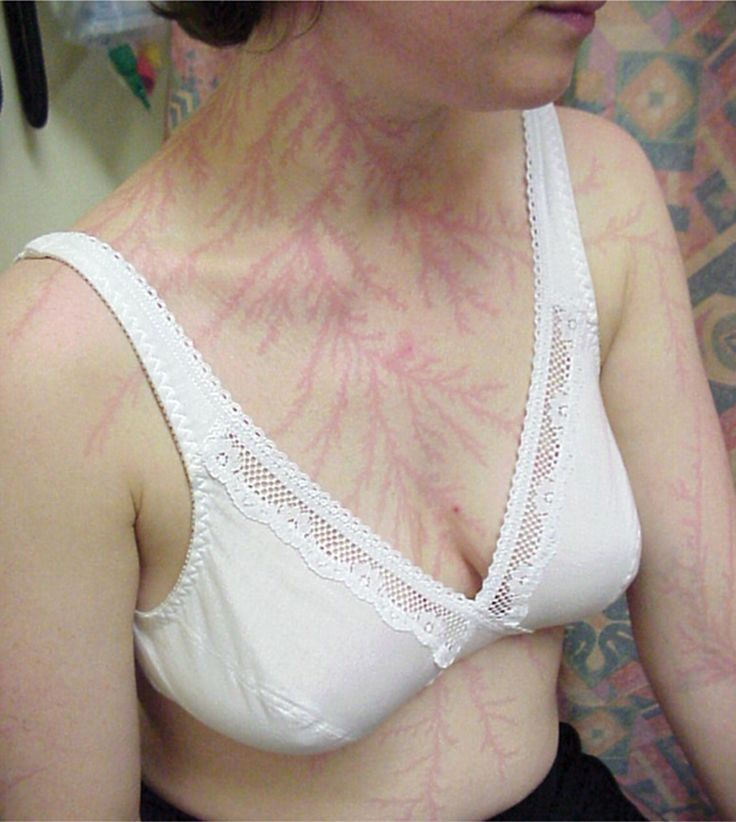Lichtenberg figures may appear on the skin of lightning strike victims. These are reddish, fernlike patterns that may persist for hours or days. They are also a useful indicator for medical examiners when determining the cause of death.