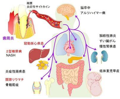 【プレスリリース】歯周病と関節リウマチの関連メカニズムを解明しました | 日本の研究.com