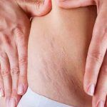 7 Powerful Home Remedies For Stretch Marks That Really Work