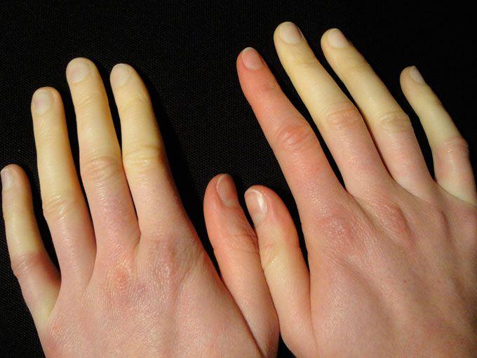 Qué es el fenómeno de Raynaud impide la circulación. El fenómeno de Raynaud impide la circulación y deja las manos y los pies fríos.