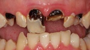 Caria dentară – STOMATOLOGIE
