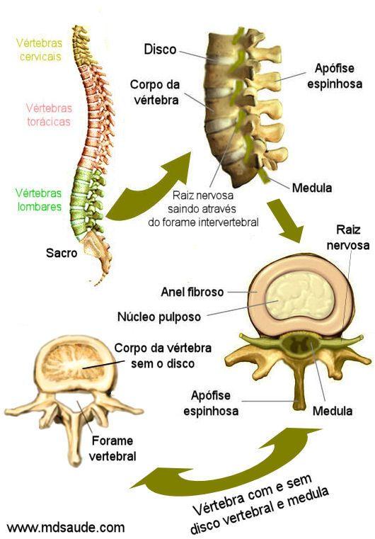 HÉRNIA DE DISCO | Sintomas e tratamento ~ PcD On-Line