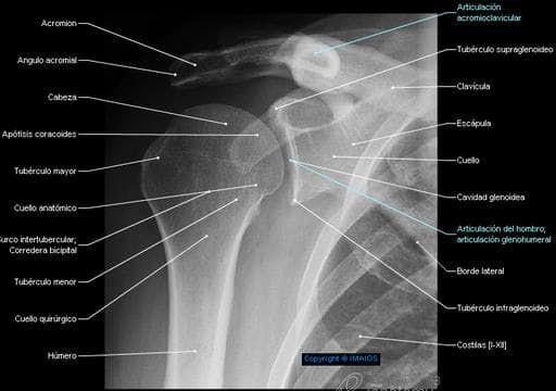 Hombro - Cintura escapular - Radiography - Anatomía Humana : Articulación del hombro; articulación glenohumeral, Acromion, Clavícula, Escápula, Cavidad glenoidea, Tubérculo menor, Apófisis coracoides