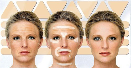 Natural alternatives to Botox and dermal fillers
