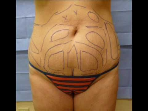 Lipo (Liposuction or Smart Lipo) Before and After