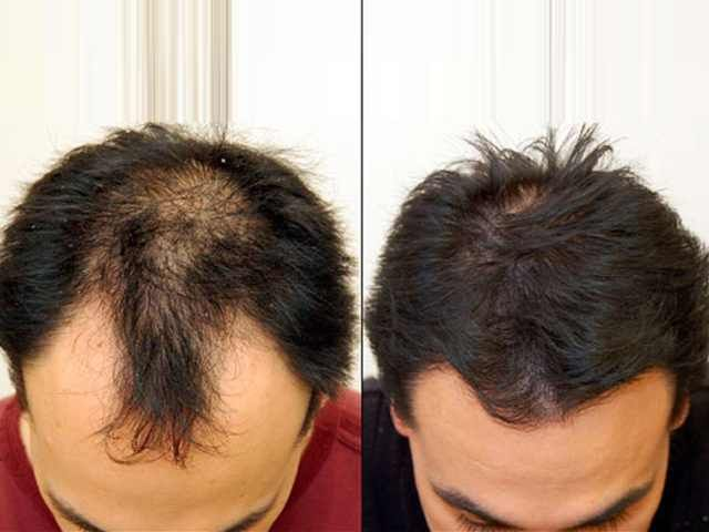 Benefits of  #Hair Replacement and Hair #Transplant Surgery