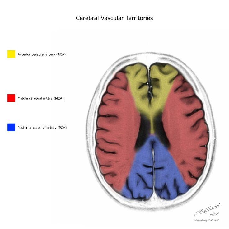 Mejores 9 imágenes de Radio - Neuro en Pinterest | Radiología ...