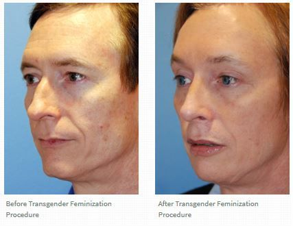 This is a before after a facial feminization procedure where a rhinoplasty, brow bone reduction | shaving, chin reduction, lip vy advancement with permalip augmentation, cheek implants were done. Transgender facial feminization can be achieved even better with the guidance of our facial beauty theory that was discovered by Dr. Philip Young of Bellevue Washington.