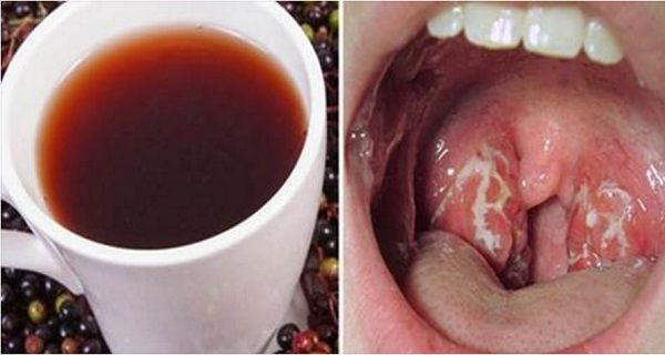 Viral infections, bacterial infections or some health problems are one of the reasons for a sore throat . An infection in our respiratory system manifests through pockets of pus in the throat, which can come as a result of colds, the flu or mononucleosis. This may have serious consequences if left untreated even though the …