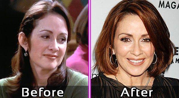 Patricia Heaton Plastic Surgery Photos #celebsundertheknife #celebs #celebrity #plasticsurgery #celebritysurgery #nosejob #patriciaheaton