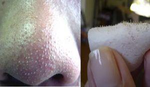 Cómo deshacerse de los puntos negros en la nariz de forma rapida en la casa