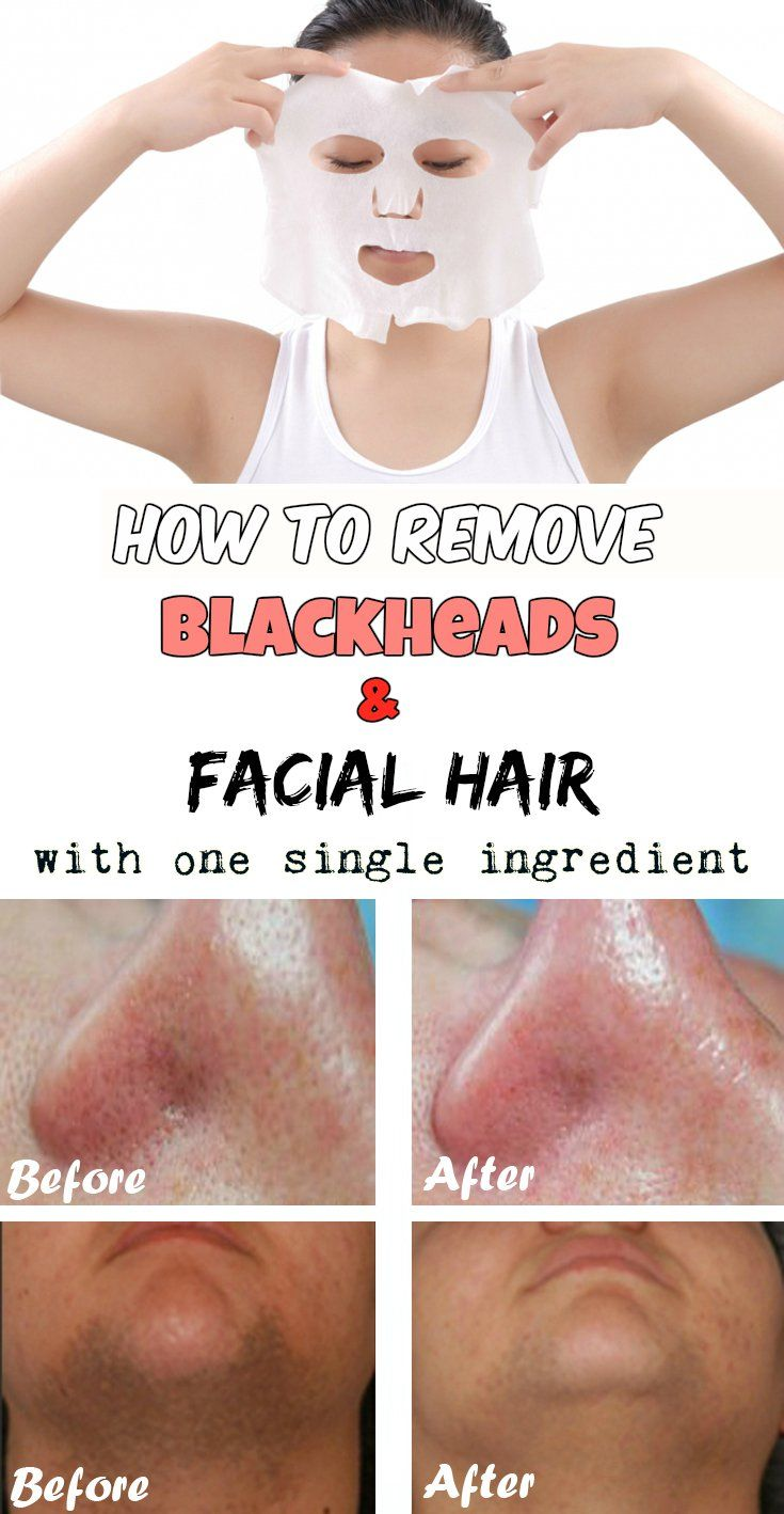 How to remove blackheads and facial hair with one single ingredient - BeautyTutorial.org