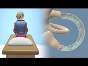 http://www.FauquierENT.net - Video demonstrates how the Epley maneuver is performed to treat POSTERIOR canal BPPV affecting the right ear. Animation showing ...