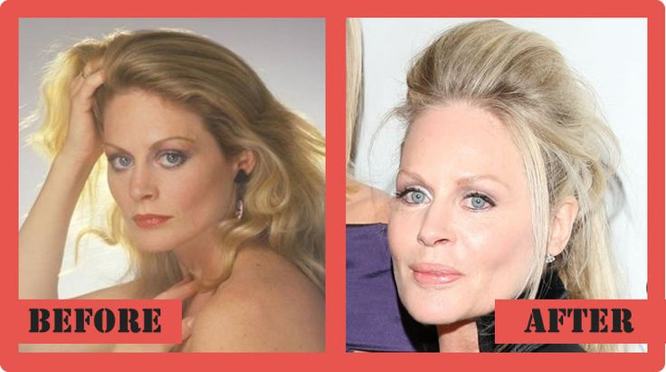 Beverly Dangelo Plastic Surgery Before And After Beverly DAngelo Plastic Surgery #BeverlyDAngeloplasticsurgery #BeverlyDAngelo #celebritypost