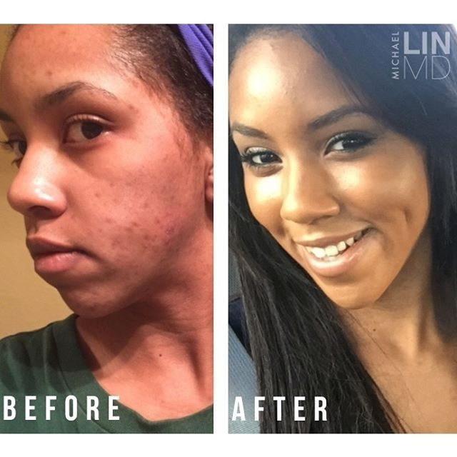 "Do it for the after! ""The frequency of my breakouts has reduced and I no longer have large painful acne blemishes"" (Dr. Lin Skincare Acne System review via BeautyStat.com). 👉 Product Link in bio! #drlinskincare #michaellinmd #drlin #beautystat #beforeandafter #clearskin #acne #hyperpigmentation #skincare #beauty #summerskin #dermatology #beverlyhillsdermatologist"