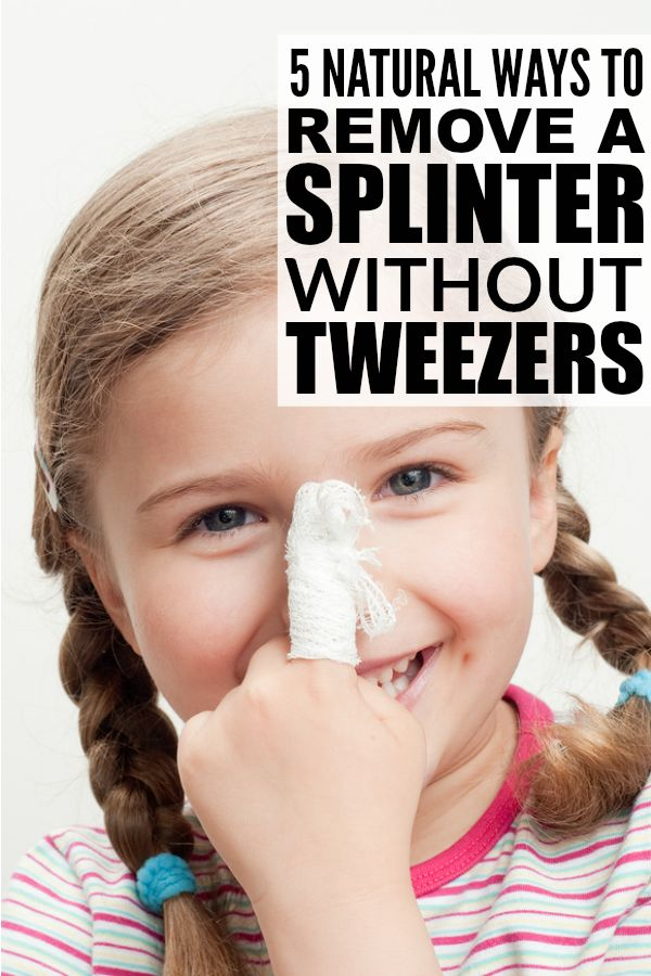 Removing a splinter from little fingers, or even from a foot, can be a very painful experience and result in a lot of tears and heartache for kids and parents alike. The good news is that there are lots of natural ways to remove a splinter that are relatively painless. Check out these tips to teach you how to remove a splinter and learn how you can extract even the most stubborn splinter with baking soda, with glue, with epsom salt, and with foods you have lying around your house!