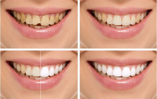 Dentaltown - A smile makeover can change your entire appearance virtually overnight.