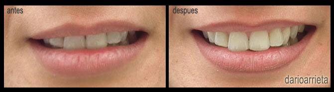 Tratamiento de #micropigmentacionlabios realizado por #DarioArrieta. Con el #perfiladopermanente se ha corregido la asimetría del labio y ahora luce una #sonrisaperfecta.