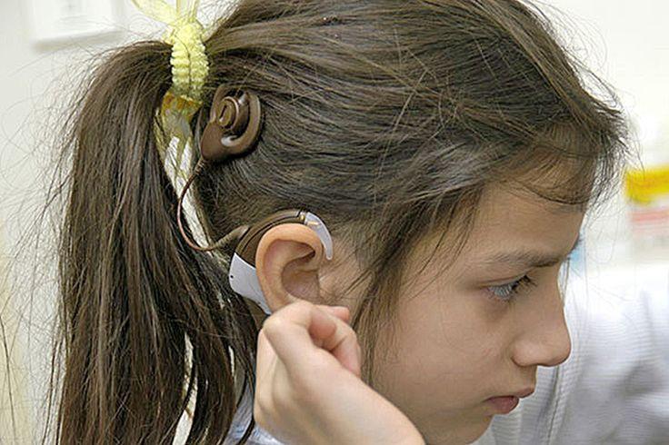 Los implantes cocleares: una manera diferente de 'oír'