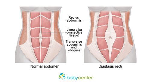 If you have a diastasis recti, you may look pregnant months, or even years, after giving birth. Find out how to tell if you have this condition and how to fi...