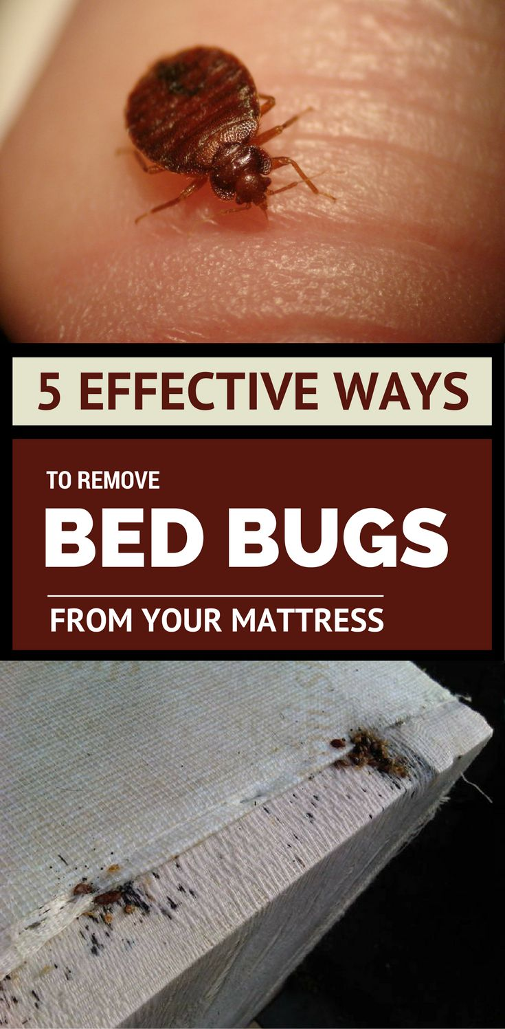 5 Effective Ways to Remove Bed Bugs From Your Mattress
