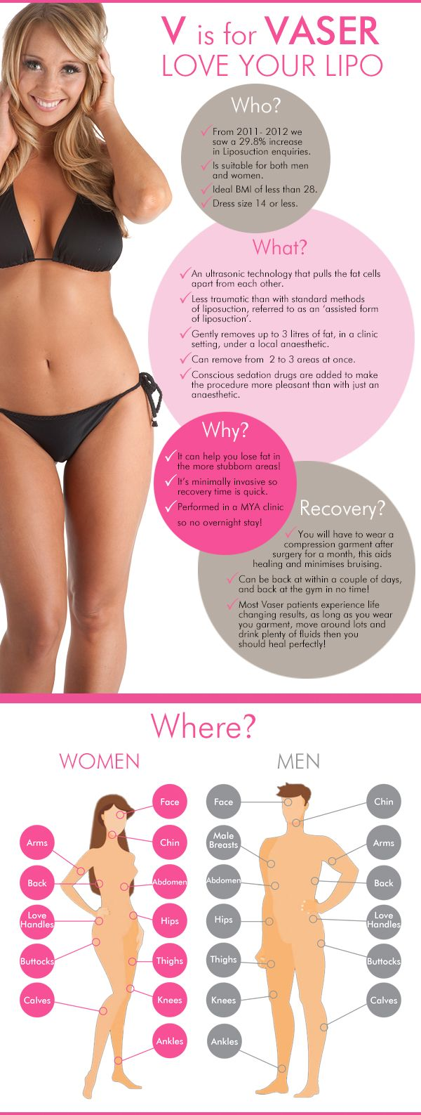 V Is For Vaser Liposuction Infographic.