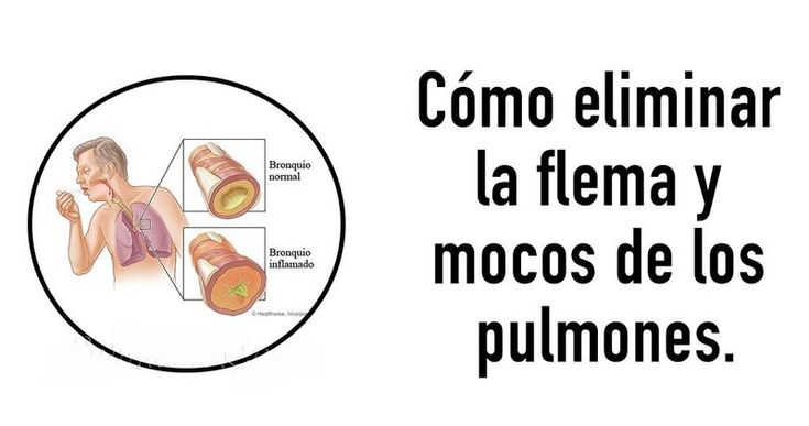 5 Remedios de la abuela para eliminar las flemas y otros consejos para evitarlas. - hogarynatura.com