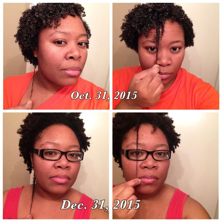 My hair growth journey from using hairnamics for 2 months