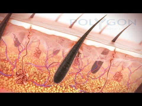 how to stop androgenic alopecia naturally