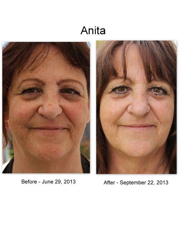 Anita went from sceptic to Luminesce convert!